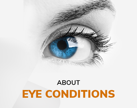 Florida Eyecare Associates - Eye-condition
